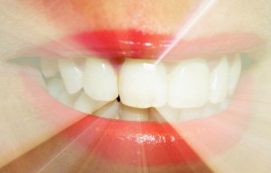 Even though these products do help to whiten teeth, you cannot find over-the-counter whitening toothpastes, gels or strips that will be able to be as effective as what you will receive from our dental office in Sidney, OH.