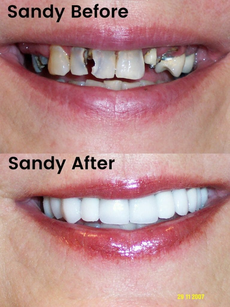 Sandy Before and After